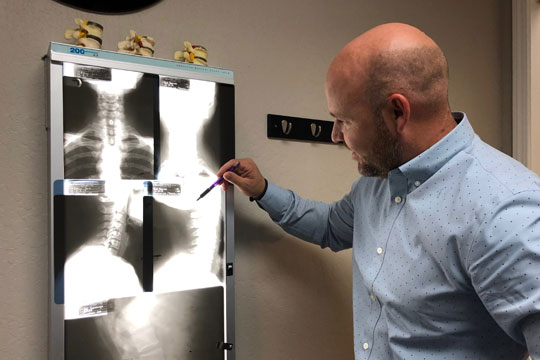 Reviewing X-Rays at Babcock Chiropractic & Wellness Center
